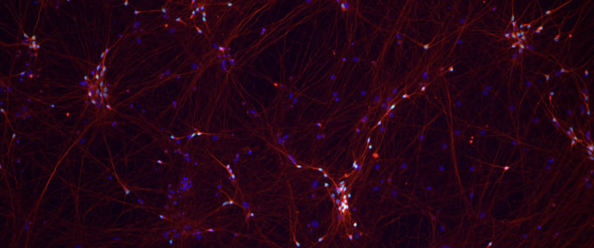 Kampmann Lab neurons